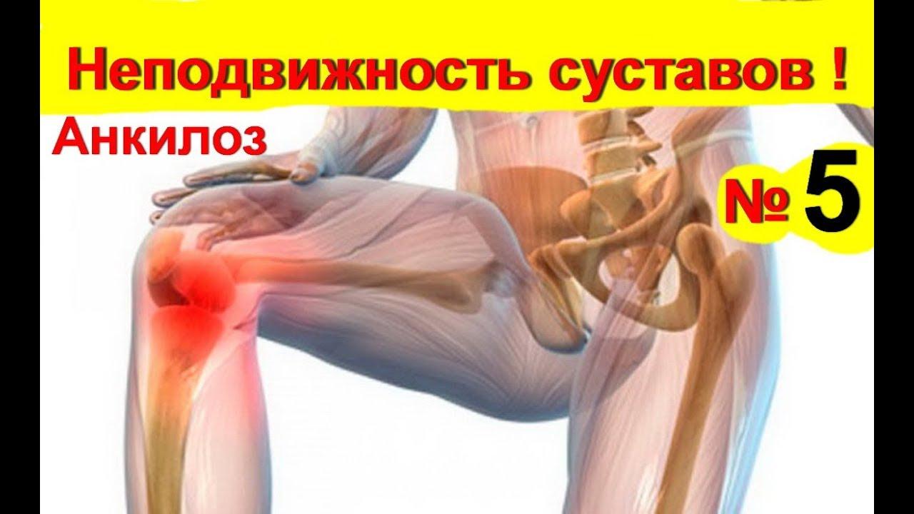 kórtörténet artrózis bokaízület)
