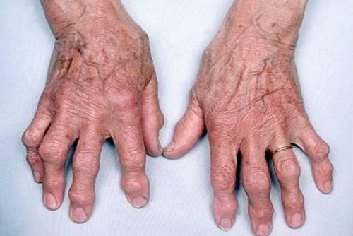 kezelési rendszer a kéz artrózisához