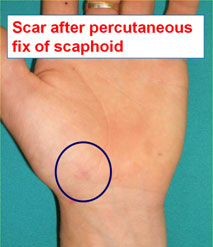 scaphoid fracture surgery