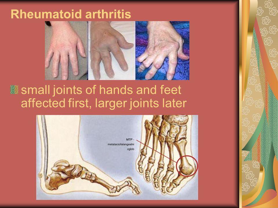 a kis ujj ízületének kezelése