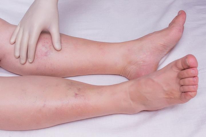 ízületi fájdalom a lábban és a bokaban)