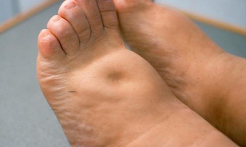 vizes dagadt láb kezelése