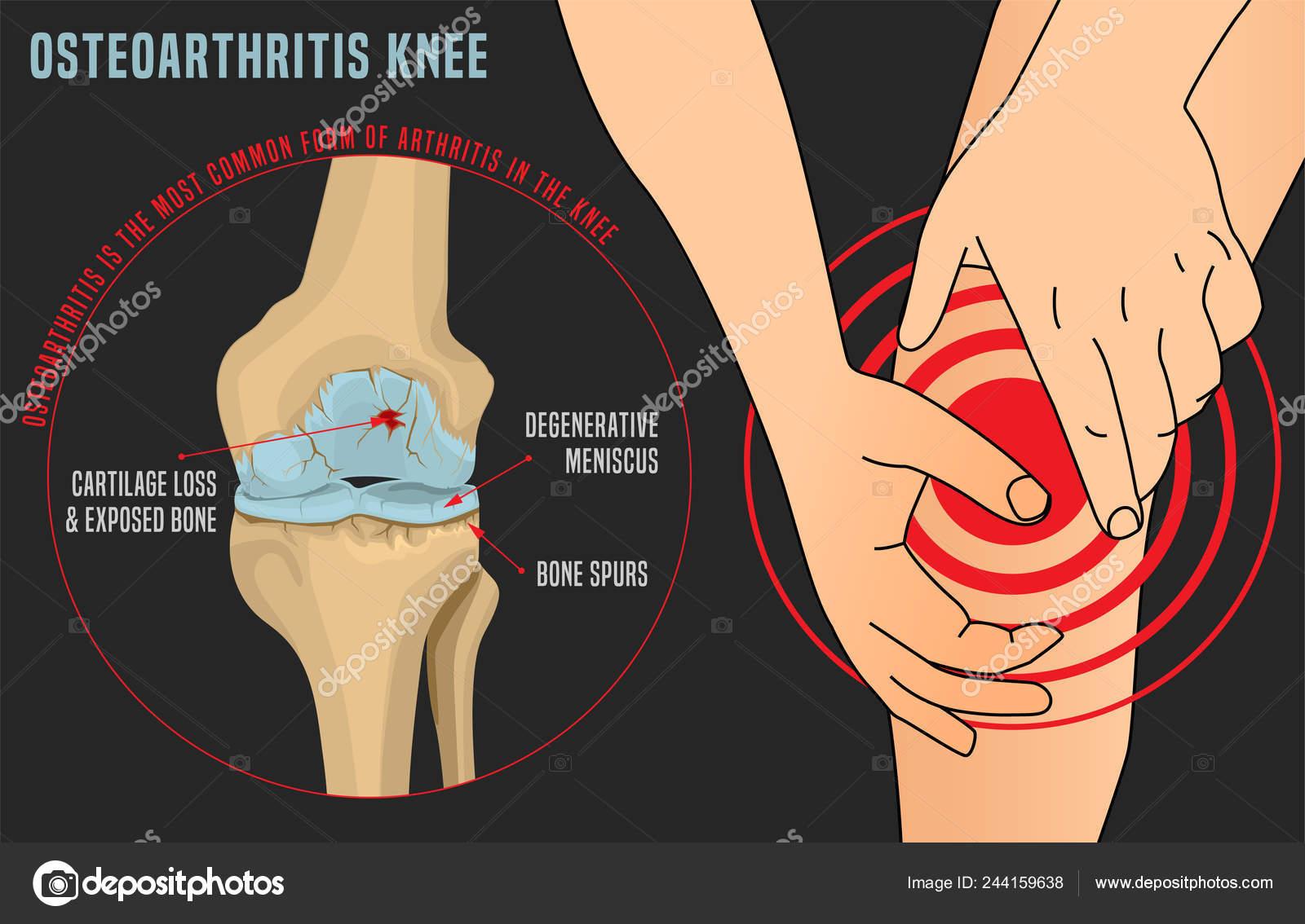 térd kenőcső osteoarthrosis artrózis artritisz hidrogén-peroxid kezelés