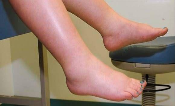 ízületi betegség májbetegséggel fájdalom duzzanat a hüvelykujj ízületén