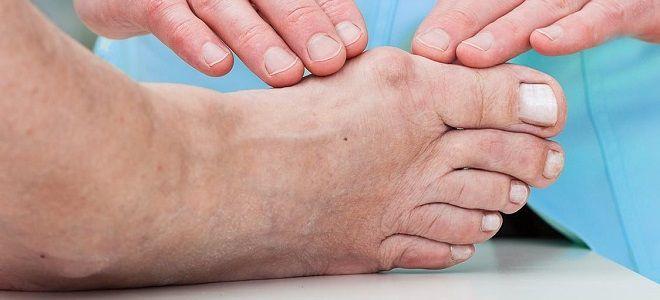 Melyek a lábujjak deformációja és hogyan kell azokat kijavítani? - Frissítő