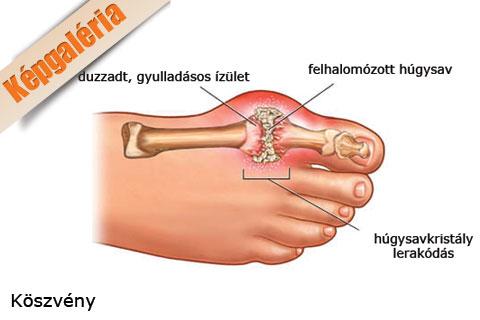 ízületi gyulladás a nagy lábujjon