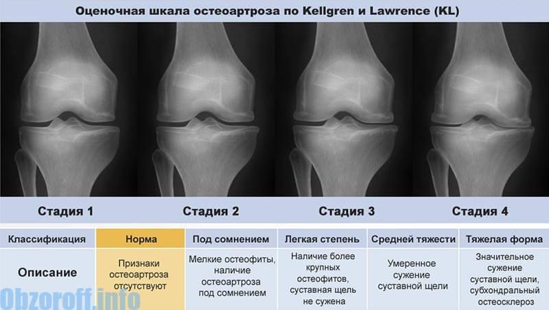 artrózis utolsó stádiumú kezelése a karok lábainak ízületei fáj a nyakat