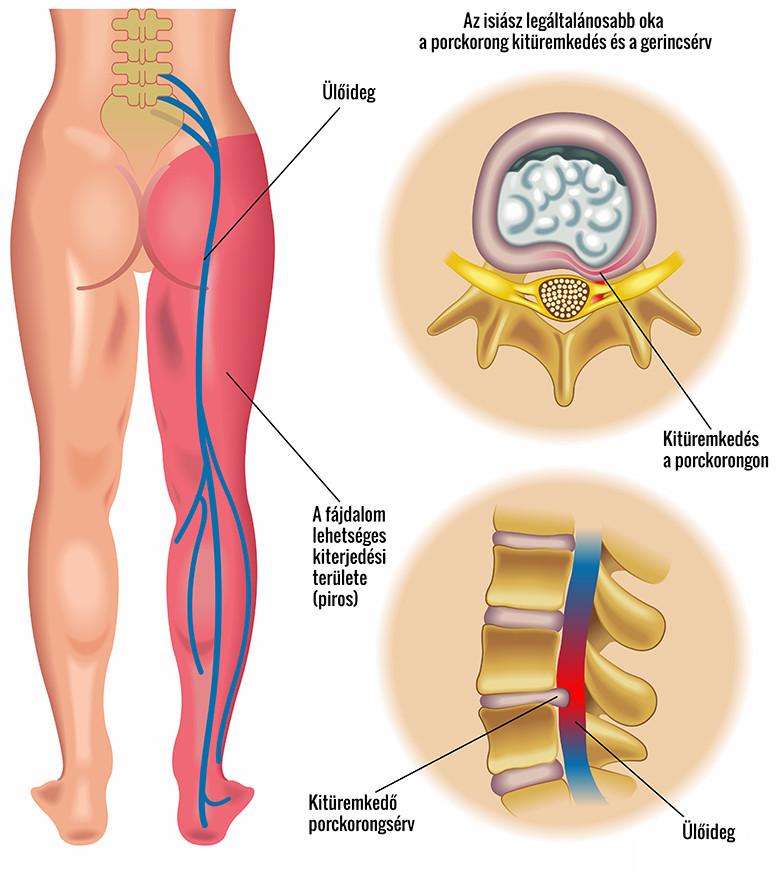 fájdalom a csípőben és a gerincben