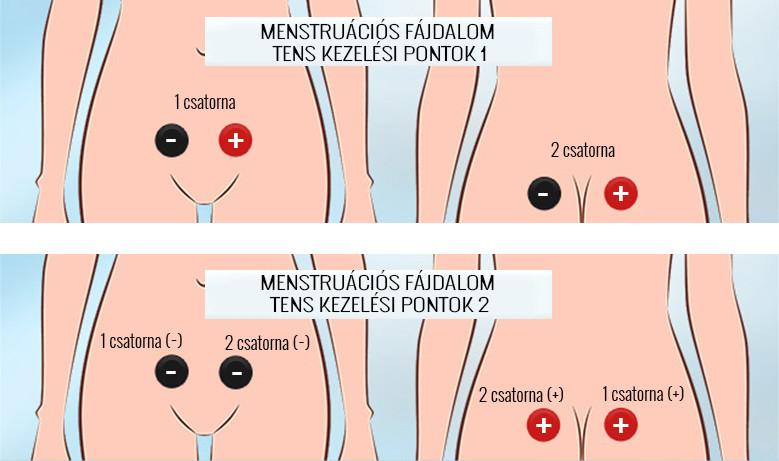 artrózis kezelése cavminvodynál