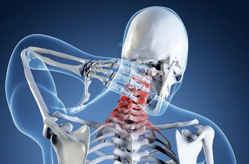 milyen kenőcsöt dörzsölni a nyaki osteochondrozist)