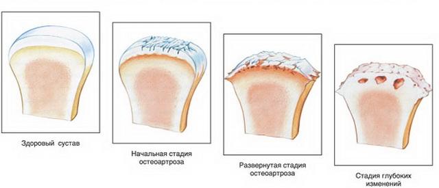 az interfalangeális ízületek ízületi gyulladása