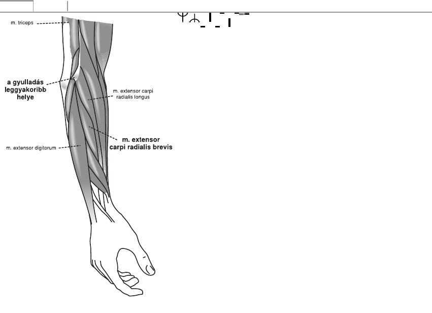 poszttraumatikus bokaízület artrózisa 1 fokos kezelés