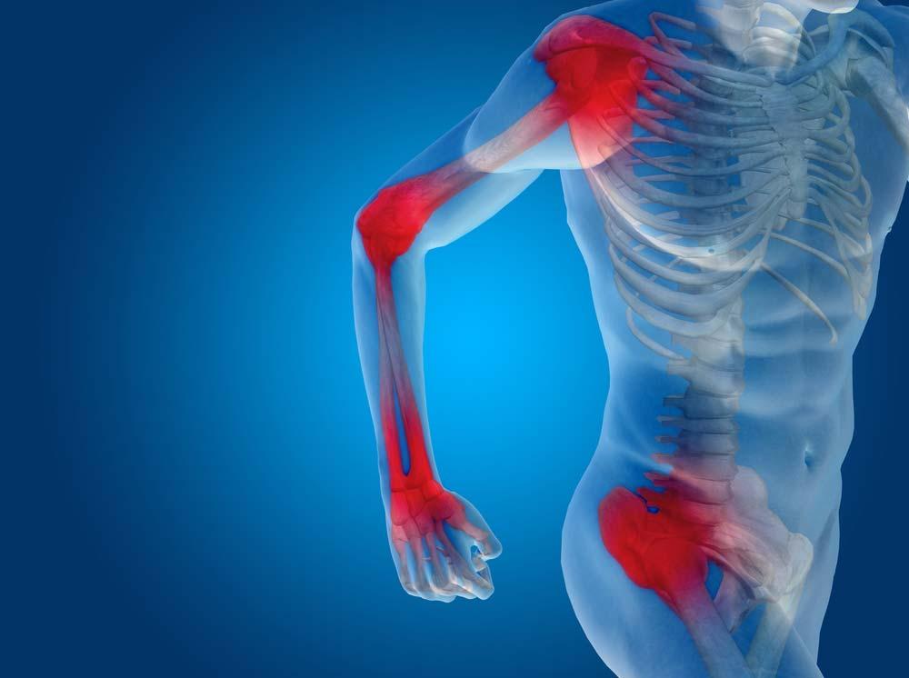 kalcium ízületi fájdalom hiánya
