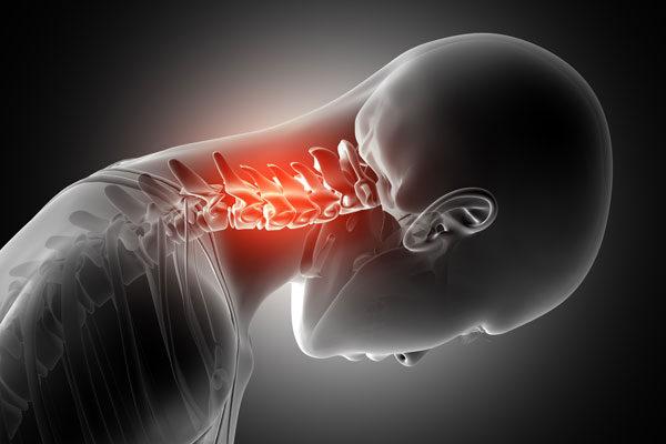 kenőcs a nyaki gerinc csontritkulásáért