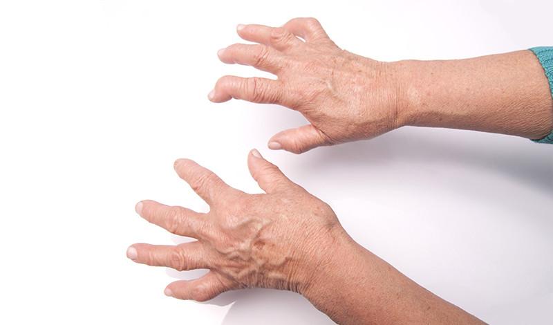 mi a helyzet az ízületi gyulladás ujjával