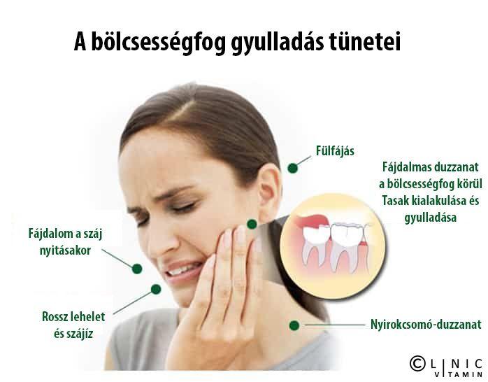 ízületi és fülfájások)