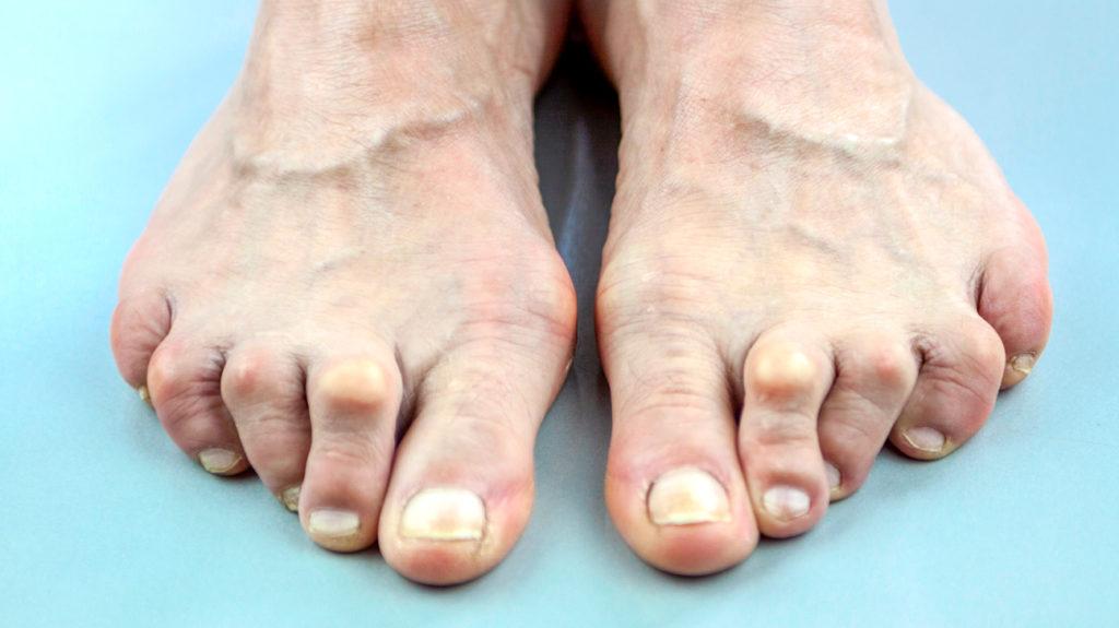 Reumatoid arthritis