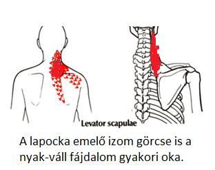 nyak váll lapocka fájdalom