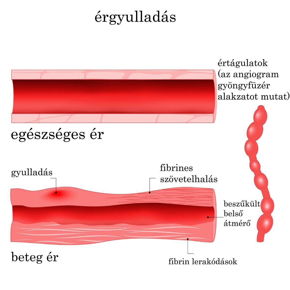 Érgyulladás (vaszkulitisz)