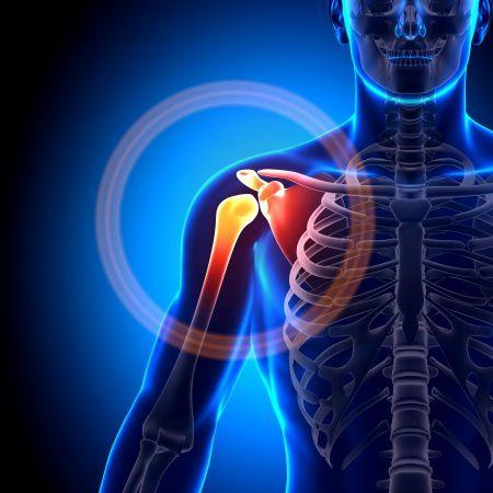 duzzanat a vállízület osteoarthrosisával izuleti gyulladás okai