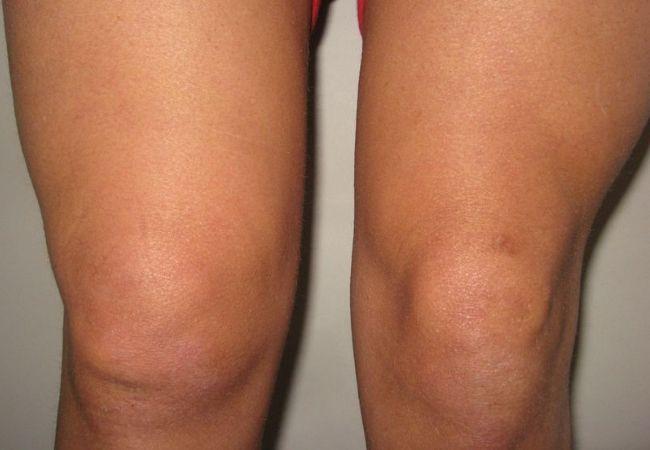 Szeptikus arthritis bokaízület