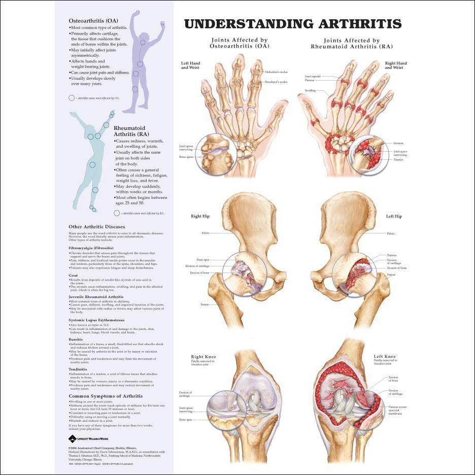 ízületi osteoarthritis kezelés áttekintése