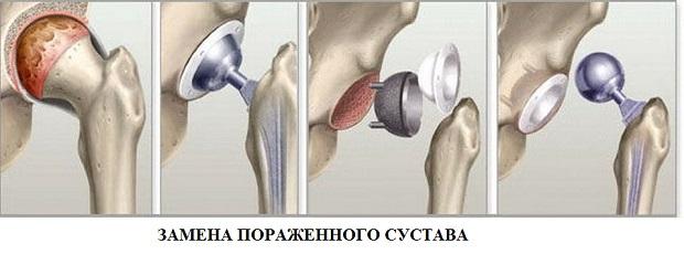 Csípőfájás az ízületekben. Ízületi fájdalom: okok. A fájdalom kezdete és okai