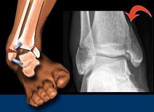 boka csontritkulás kezelése törés után