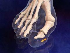 az ujjak és a lábujjak ízületei fájni kezdtek)