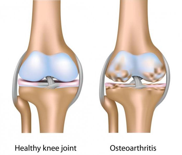 a térd artrózisáig