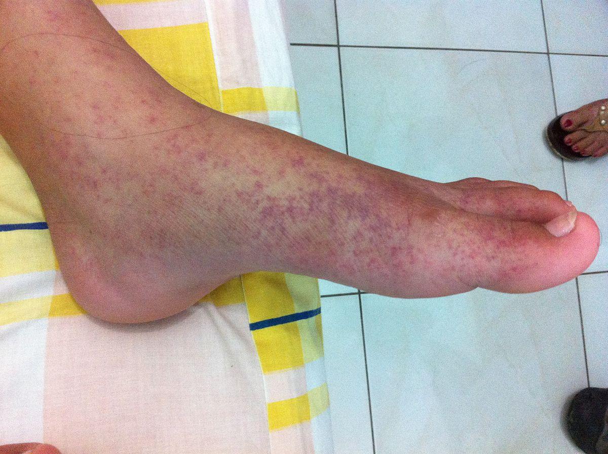 ízületi fertőző betegség tünetei