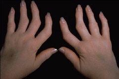 mi a reumás ízületi fájdalom ízületi kreolin kezelés