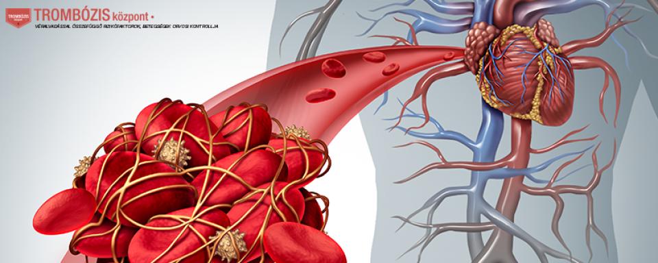 ízületi gyulladásos ujjízületi kezelés deformált osteoarthritis és kezelése