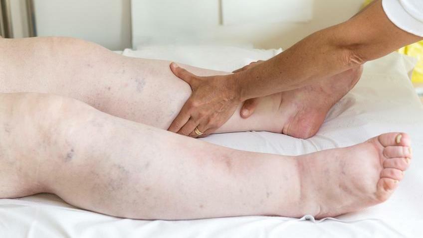 ödéma kezelése artrózissal)