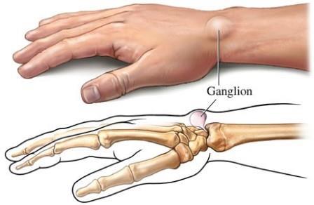 a csuklóízület fáj a ütés után