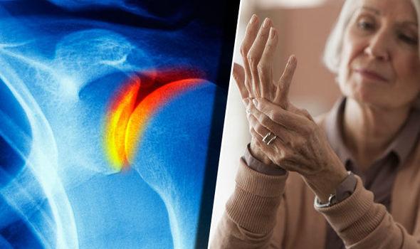 lehetséges az artrózis kezelése megfázással