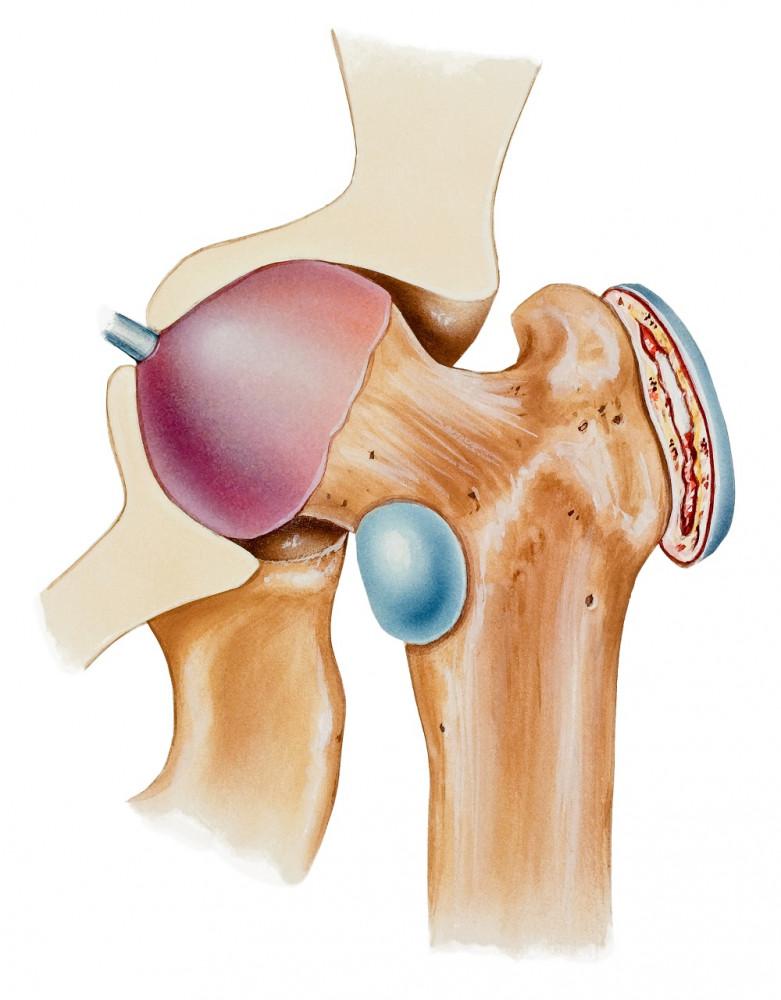 minden ízület deformáló artrózisának műtéti kezelése)
