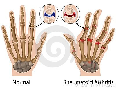 A kezek deformáló arthrosisának helyes kezelése