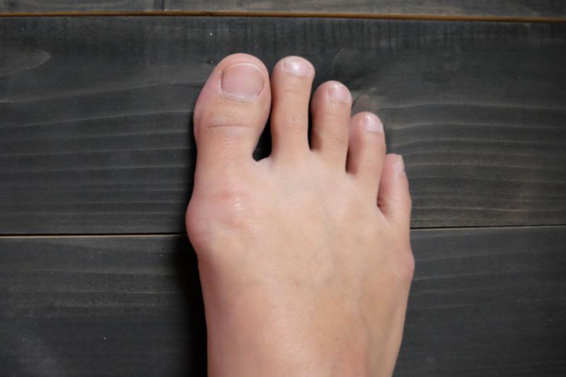 dudor a nagy lábujj kezelésére)