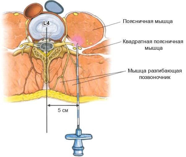 az ágyéki osteokondrozis kenőcsének neve)