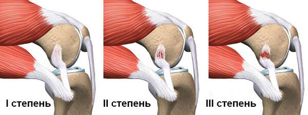 a boka ízületének kötszerzése ligamentum sérülés esetén