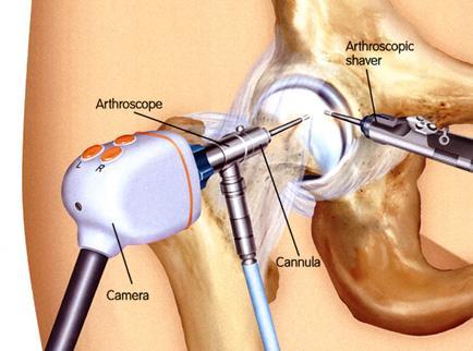 a patellofemorális ízület deformáló artrózisa