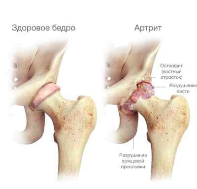 csípő patológia kezelés