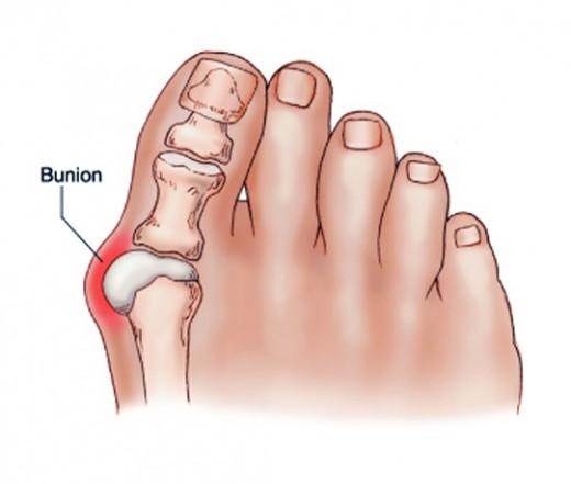 hogyan lehet gyógyítani a lábujjak ízületi gyulladását