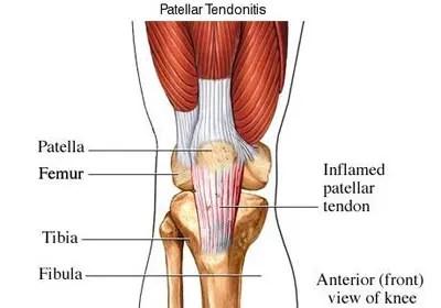 térdízület ligamentumainak helyreállítására szolgáló készítmények)