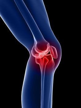 kiürülés a térdízületben artrózis miatt)
