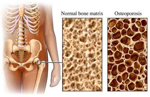milyen krém a nyaki csontritkulás kezelésére)