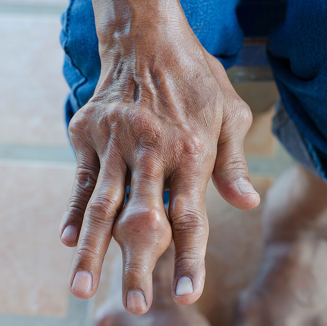 a lábak kis ízületeinek gyulladása