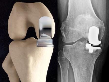 térd térségében lévő ligamentum törése)