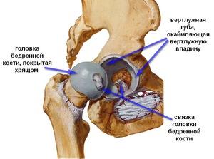 fájdalom a csípőpótlás után